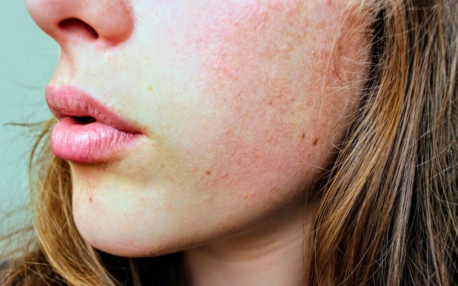 The Most Common Culprits of Skin Damage You Aren't Paying Attention To